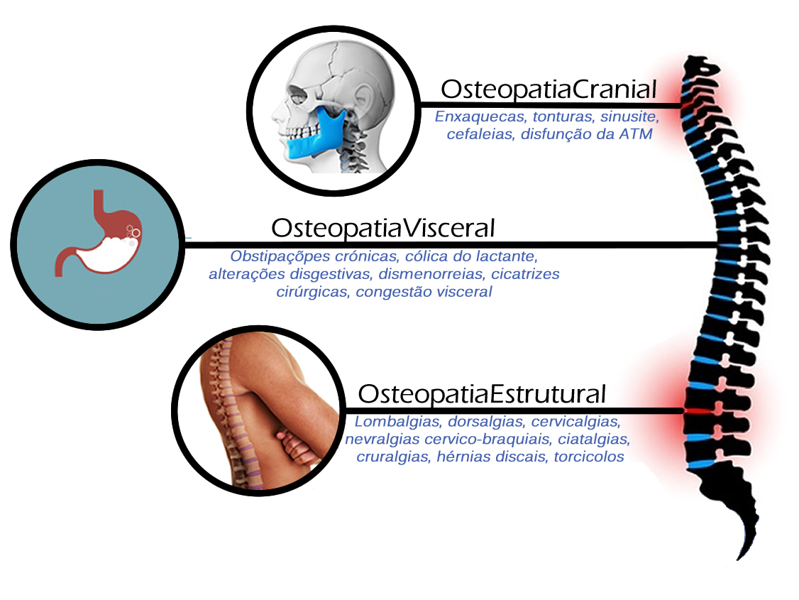 Diagrama Osteopatia